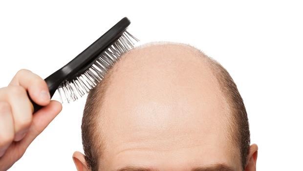 掉髮再嚴重都有救!日本新技術,用一點點毛囊細胞就能長出100倍髮量