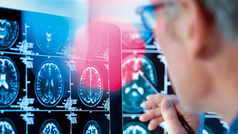 IBM研究院公布報告顯示,它與輝瑞共同研製的AI系統,可透過分析寫作內容,提前診斷出受測者是否可能罹患阿茲海默症。