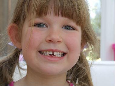 科學證實:牙齒越少 頭腦越笨