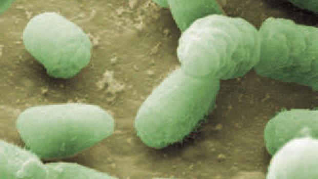 觸控螢幕和鍵盤,哪個細菌比較多?