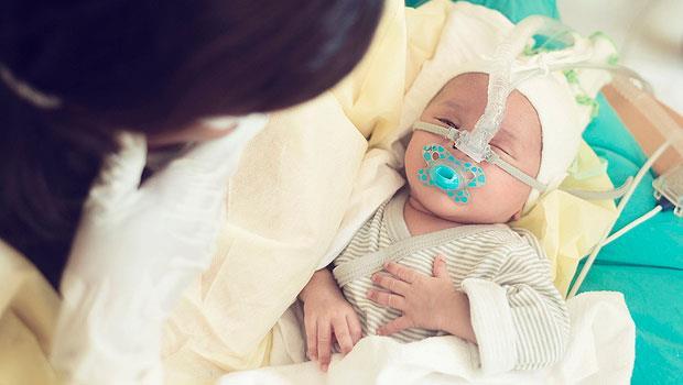 小小的身體插滿5根管子...醫師嘆息:Baby,對不起,要是我可以選擇不救你,該有多好?