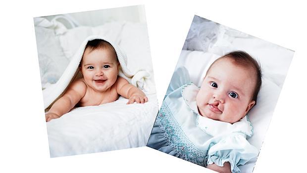 怎麼面對有先天性疾病的寶寶?以色列教育:過度憐憫或自豪基因優良,都是無知!
