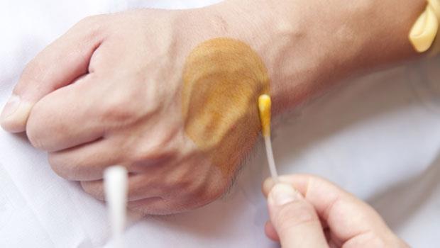 別一受傷就用優碘、傷口保持濕潤更快好!藥師告訴你4個最新傷口照顧法