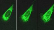 科學家發明「光驅動」奈米機器人,可在數分鐘內鑽入並殺死癌細胞!